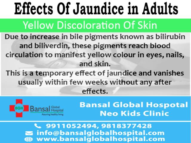 Global Bansal Hospital Jaundice