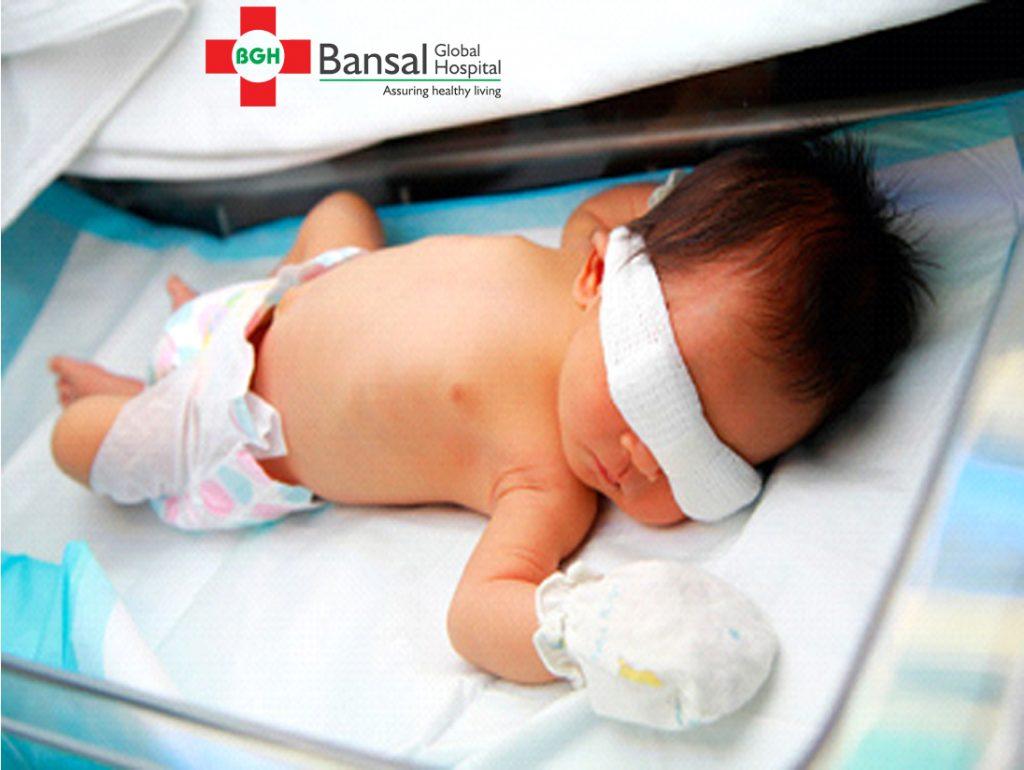 Newborn Jaundice for phototherapy