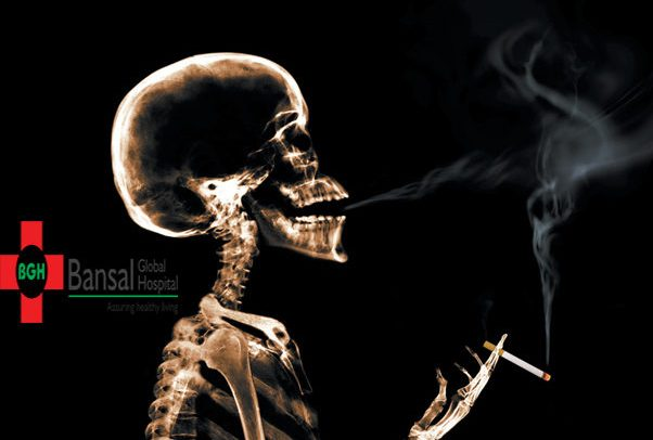 Smoking and Fracture Healing